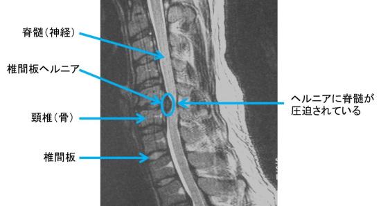 頚椎 症 性 神経 根 症 休職
